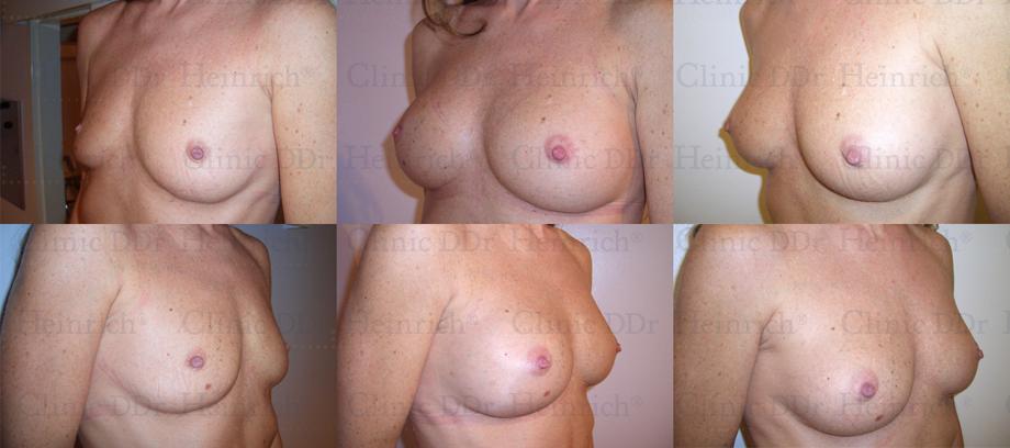 Breast Augmentation Los Angeles, Pasadena Breast