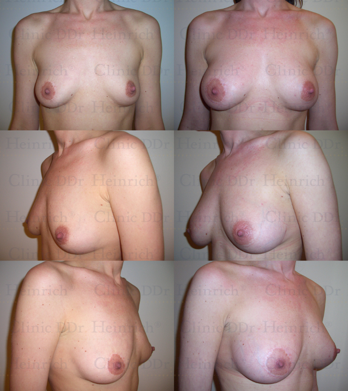 Blogs on breast augmentation