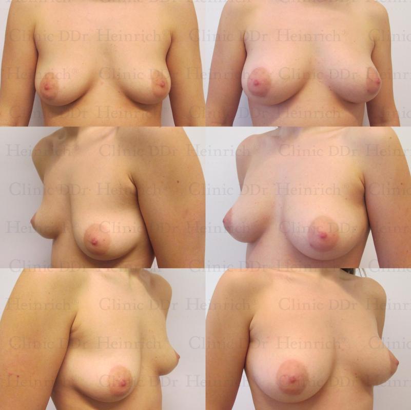 Nederlandse porno photo