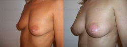 Breast augmentation with stem cell-enriched autologous fat
