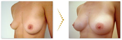 Patient before and after stem cell breast augmentation
