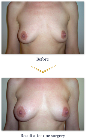 Stem cell breast before and after pictures